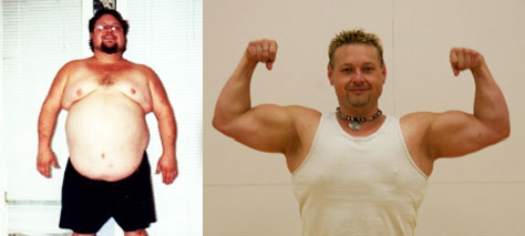 ... weight loss surgery that enabled his dream of bodybuilding glory