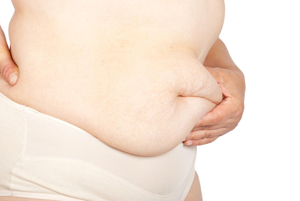 weight loss surgery excess skin